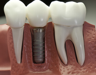 Dental Implants in Lathrup Village & Southfield MI - Signature Smiles - dental-implant