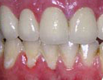 Teeth Whitening Dentist in Lathrup Village and Southield MI - Signature Smiles - teeth-whitening-procedure