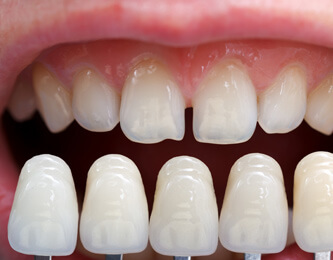 Cosmetic Dentist in Lathrup Village and Southfield MI - Signature Smiles - teeth-whitening
