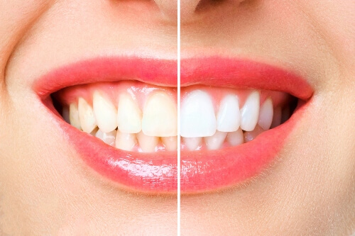 A smile is discolored on one side and white on another, displaying the outcome of teeth whitening procedures.